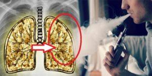 Vaping Lung Disease